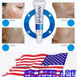 BIOAQUA Face Skin Care Acne Treatment Removal Cream Spots Sc