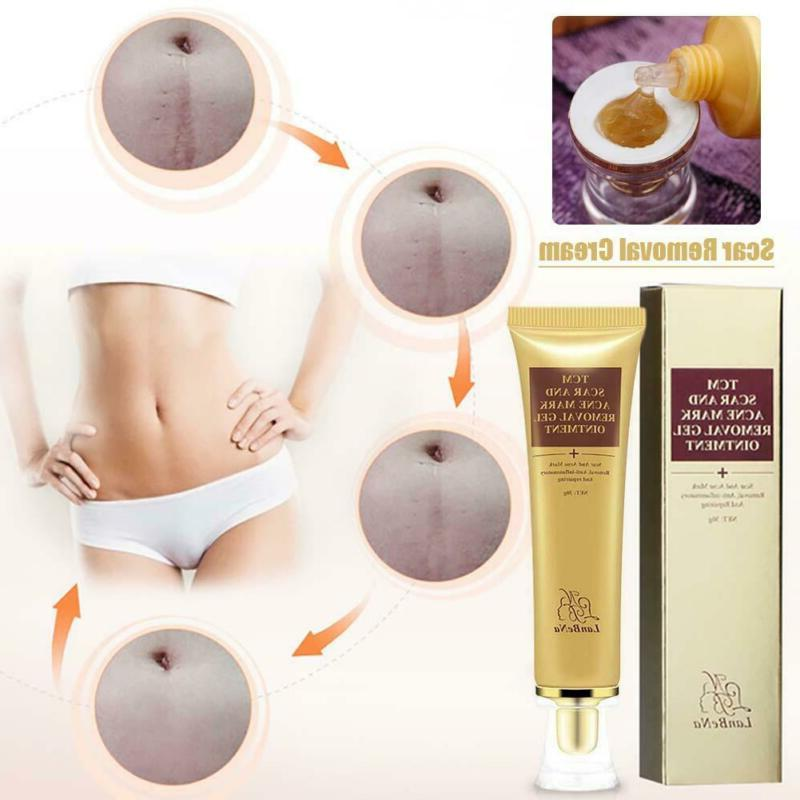 30G Stretch Removal Maternity Skin Body Cream