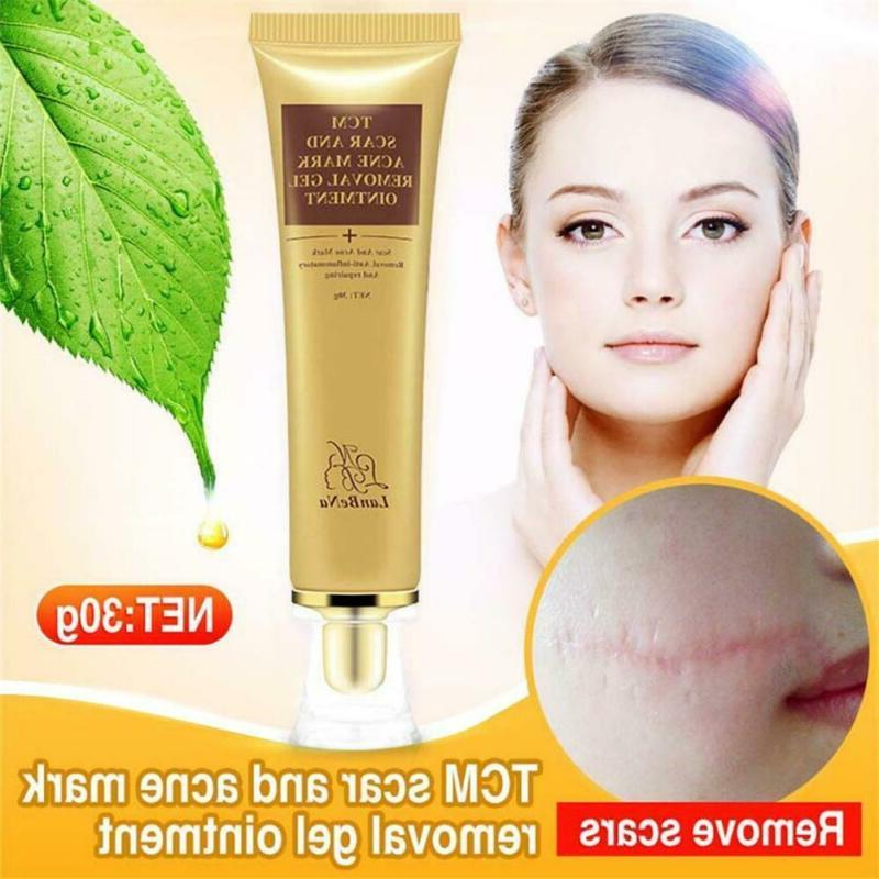 30G Scar Removal Maternity Skin Body Cream