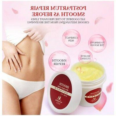 New Smooth Repair Stretch Mark Scar Removal Postpartum Mater