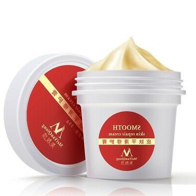 cream remove scar smooth mark skin body