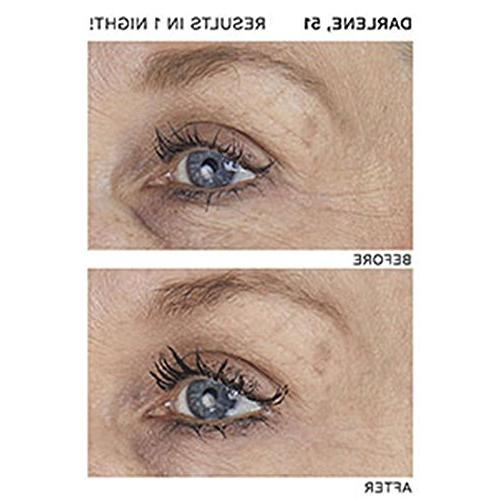SiO Lift & Smile Week Smoothing Patches For Eye Smile And Lines