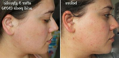 Glycolic Acid Chemical Peel Medical 100% Acne Wrinkles
