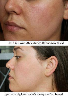 Glycolic Chemical Peel Kit Grade 100% Acne Scars Wrinkles