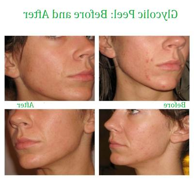 Glycolic Peel Grade 100% Pure Acne Scars Wrinkles