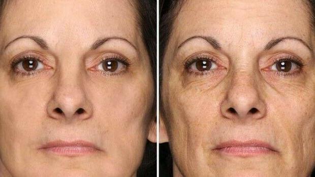 Hyaluronic Acid 3000 SERUM ,Face Eye Anti-Aging Serum