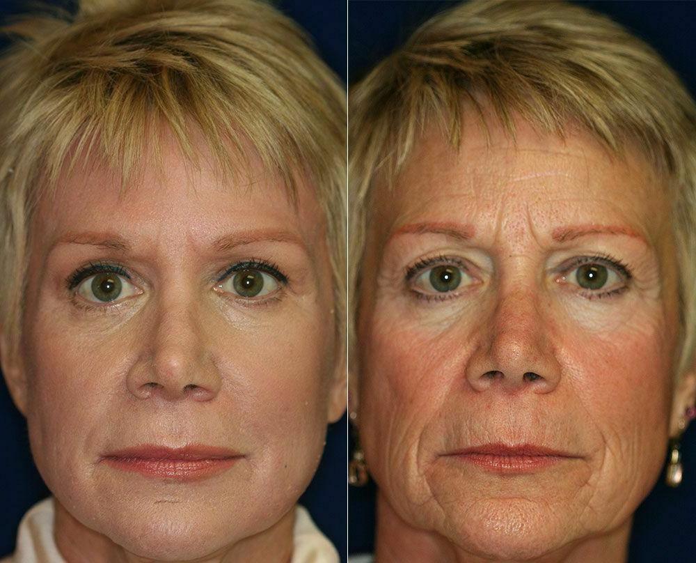 Hyaluronic Acid 3000 Peptide ,Face Eye Anti-Aging Serum
