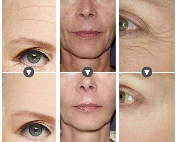 hyaluronic acid matrixyl 3000 peptide serum face