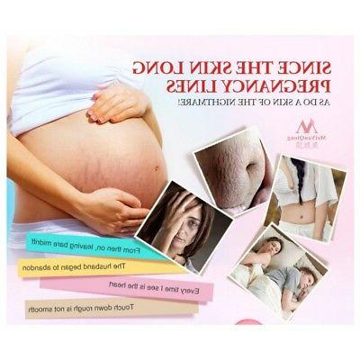 New Repair Mark Removal Maternity Skin Care