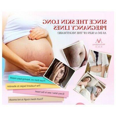New Repair Mark Removal Maternity Skin Care