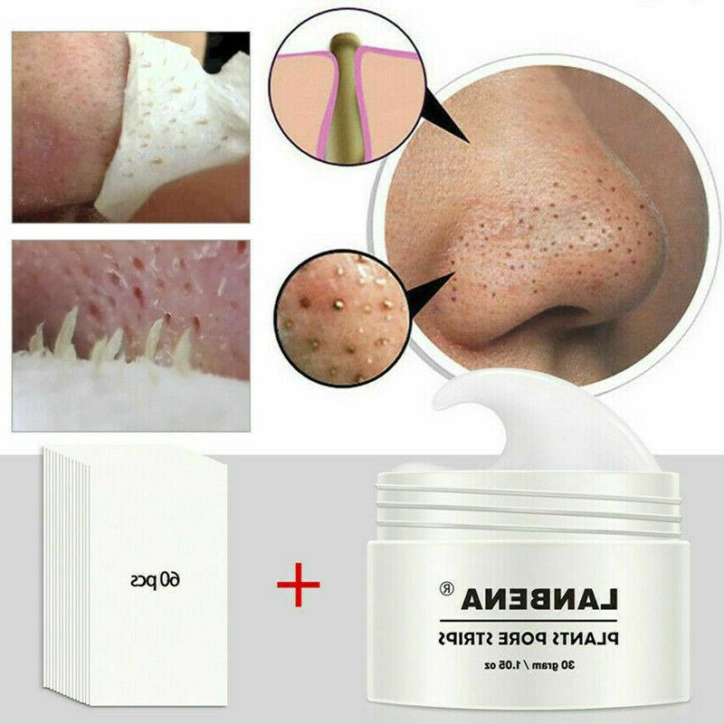 Pore Strip Suction Blackhead Remover Nose Mud Mask Peeling O