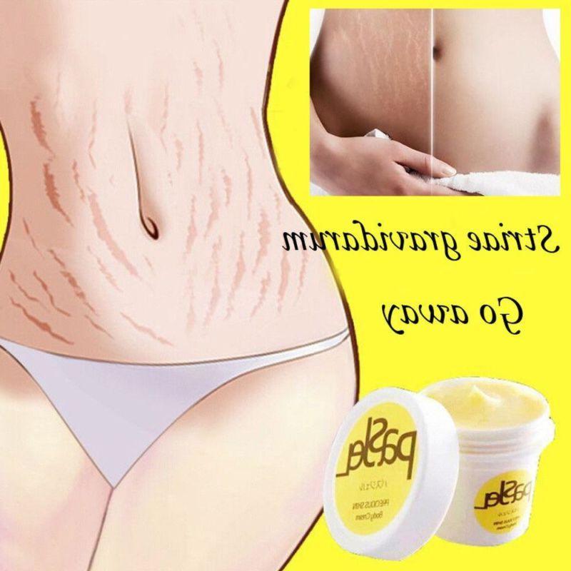 Pro pasjel Striae Romove Maternity Skin Tool