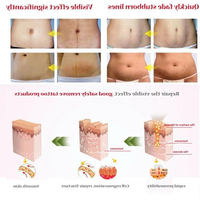 Pro Striae Gravidarum Romove Skin Body Tool