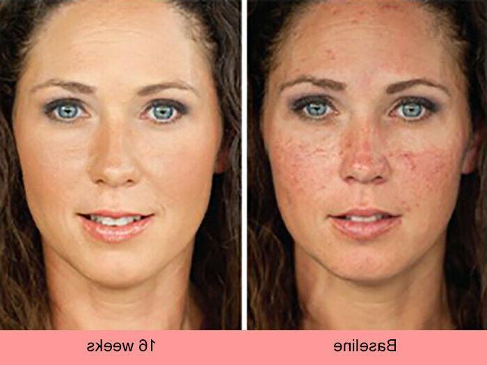 Dark Skin Whitening Lightening Ultra Brightening Serum Spot Bleaching