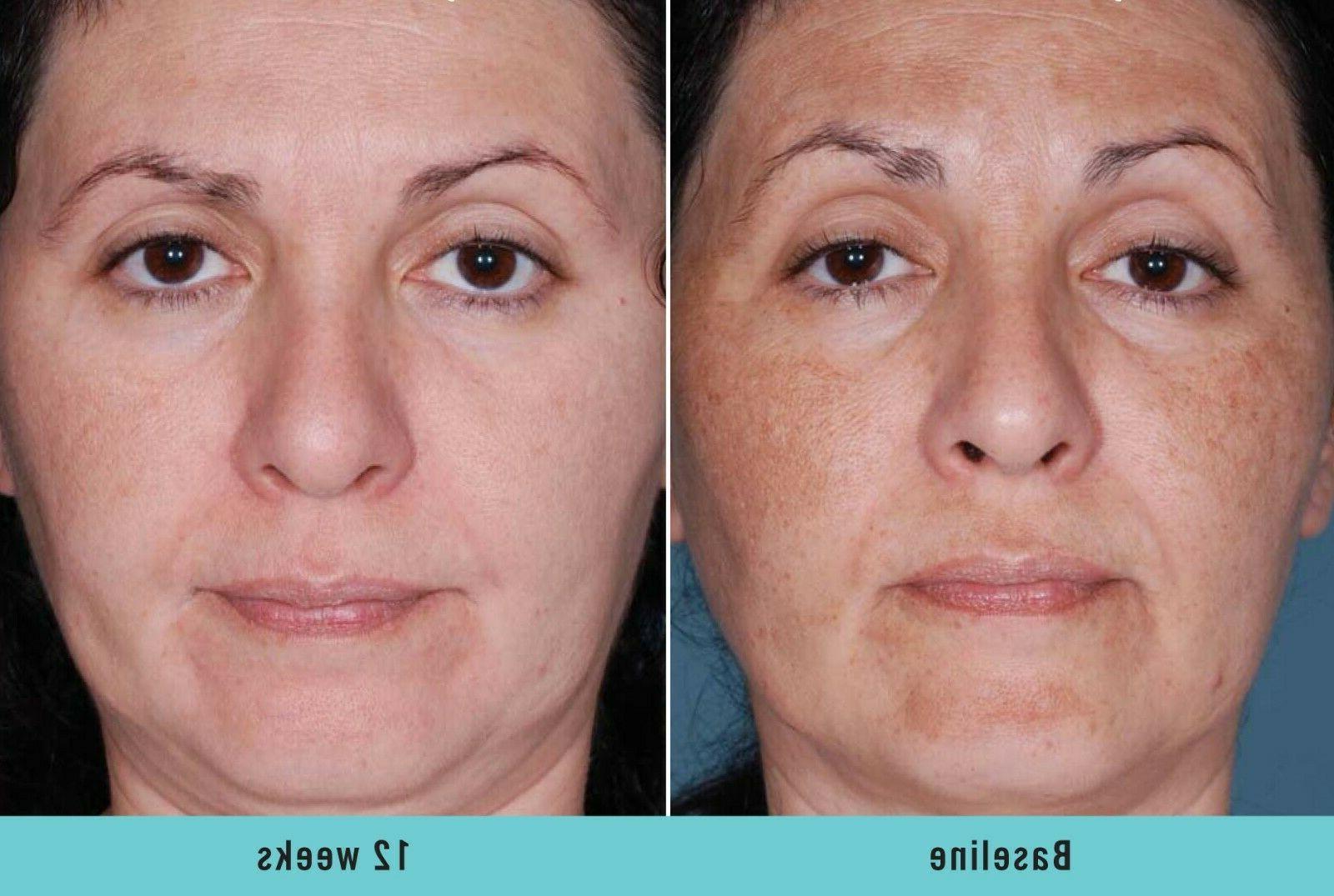 Dark Skin Whitening Lightening Ultra Serum Spot