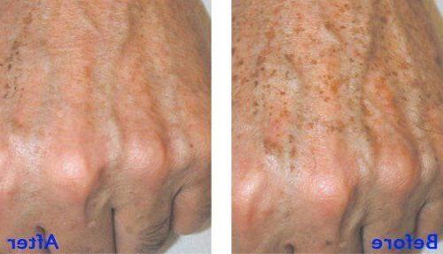 T 100% ACID Peel TATTOO REMOVER, Age Spots, Warts, Scars & STD's
