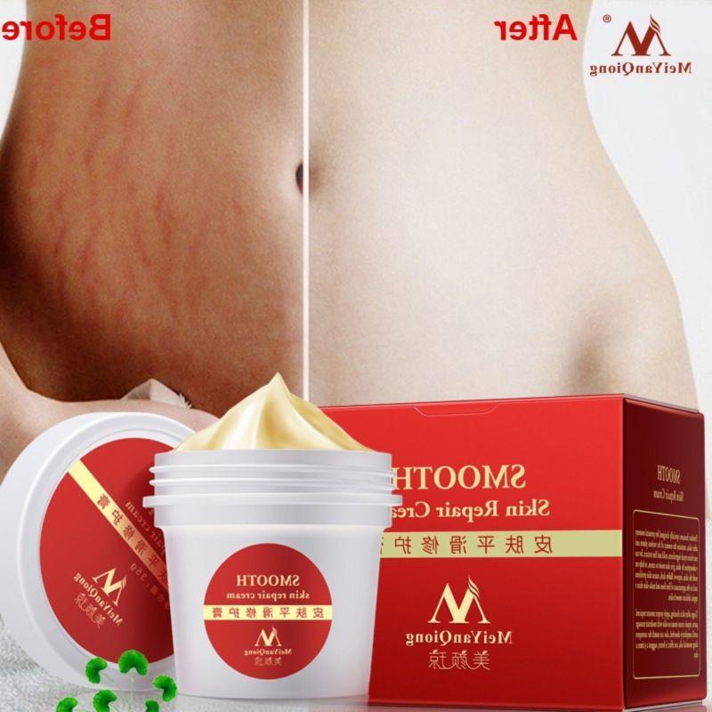 women smooth skin cream scar removal maternity