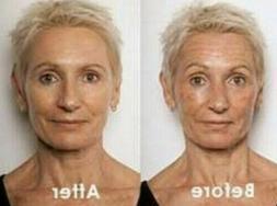 Retinol + Hyaluronic Acid & Vitamin C Anti-Aging Wrinkle GEL