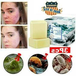 Sea Salt Soap Cleaner Removal Pimple Pores Acne Treatment Go
