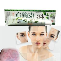 Skin Care Herbal Ointment Anti-itch Ointment Itch Relief Ste